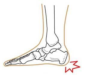 かかとが痛い-左足の-右足の-歩くと-朝起きると-急に-足底筋膜炎-かかと画像.jpg