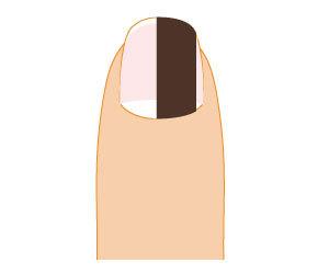 爪-黒い-縦線-皮膚ガン-メラノーマ-悪化症状-画像.jpg