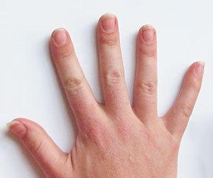 爪が割れる-原因-縦-横-貧血-加齢-病気-手-足-へこみ-症状-画像.jpg
