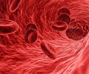 白血病-初期症状-あざ-熱-口内炎-鼻血-急性-慢性-血液画像.jpg