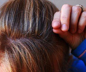 白髪-原因-30代-20代-10代-若い-場所-ストレス-女性頭部画像.jpg