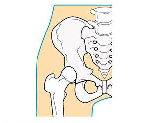 足の付け根が痛い-内側-外側-前側-生理前-妊娠初期-子供-単純性股関節炎-画像.jpg