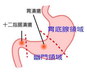 食後の腹痛-下痢-吐き気-便秘-張る-ガス-黒い便-原因-胃画像.jpg
